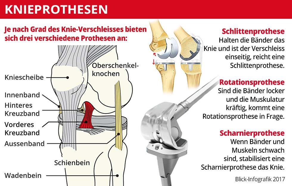 Leben mit künstlichem Knie| blick.ch